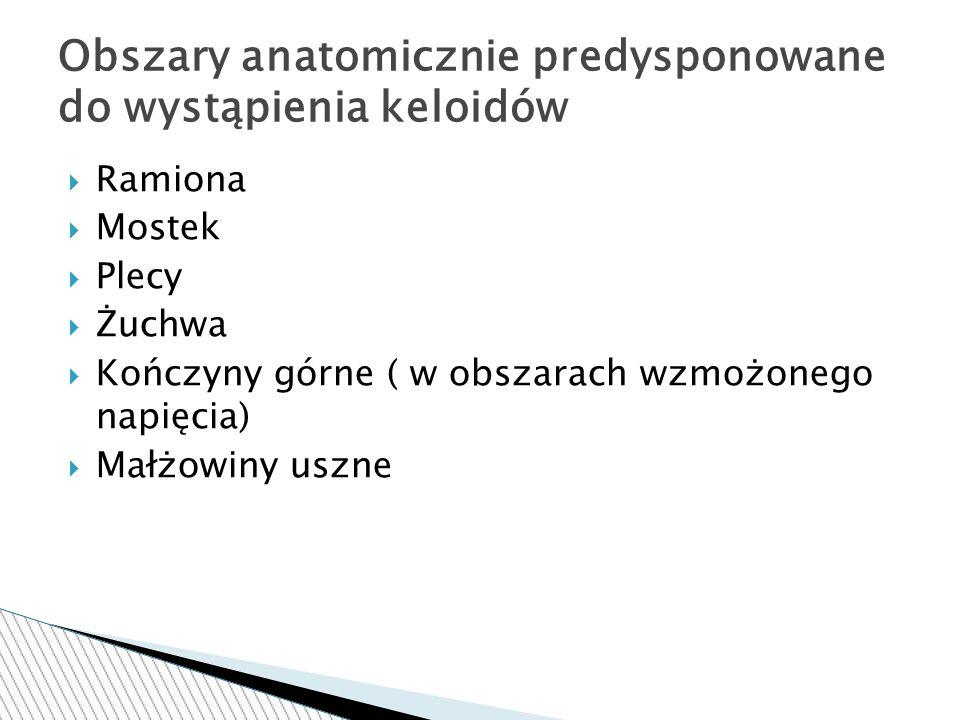  Ramiona  Mostek  Plecy  Żuchwa  Kończyny górne ( w obszarach wzmożonego napięcia)  Małżowiny uszne Obszary anatomicznie predysponowane do wystąpienia keloidów