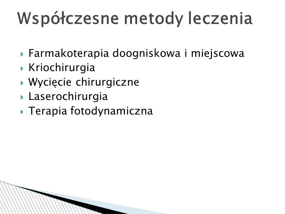  Farmakoterapia doogniskowa i miejscowa  Kriochirurgia  Wycięcie chirurgiczne  Laserochirurgia  Terapia fotodynamiczna Współczesne metody leczenia