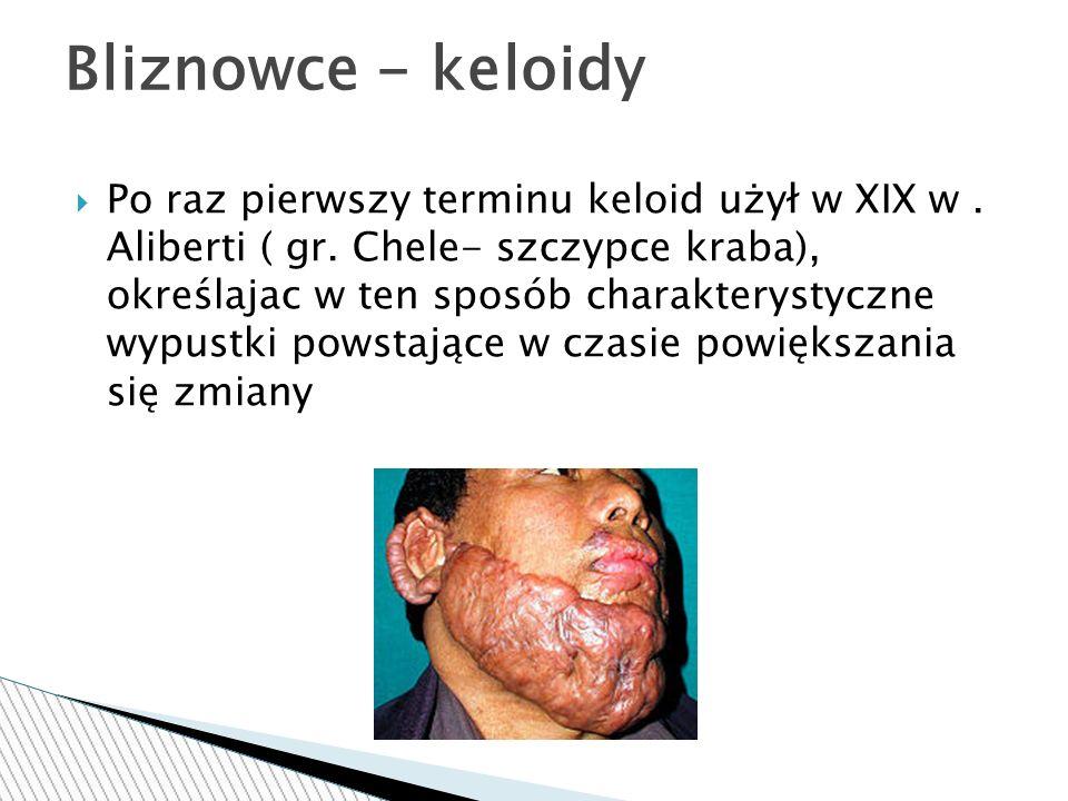  Po raz pierwszy terminu keloid użył w XIX w. Aliberti ( gr.