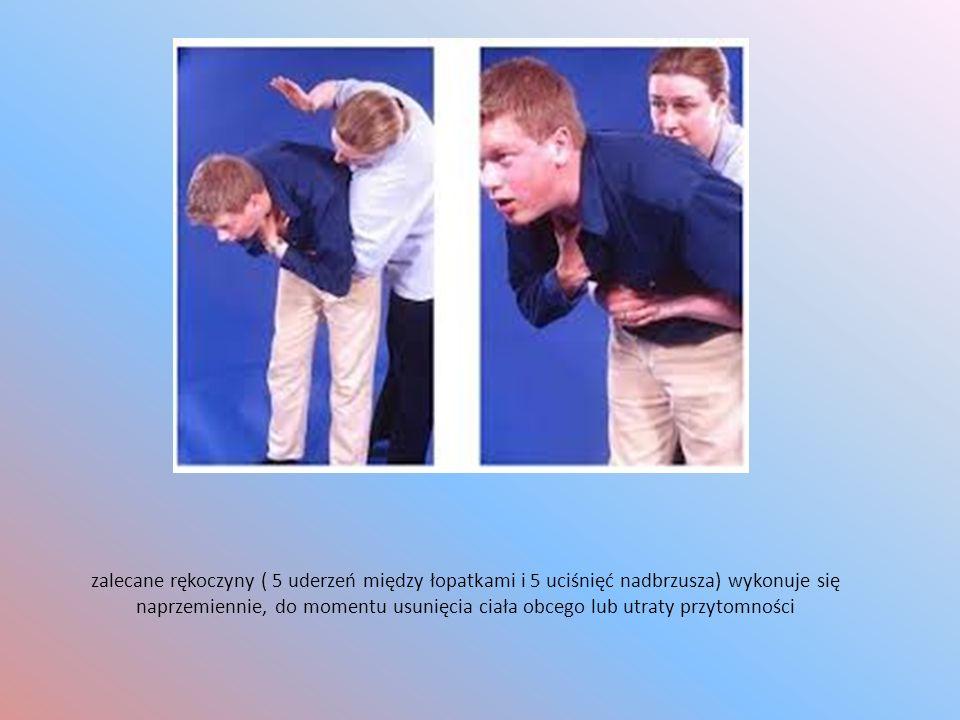 zalecane rękoczyny ( 5 uderzeń między łopatkami i 5 uciśnięć nadbrzusza) wykonuje się naprzemiennie, do momentu usunięcia ciała obcego lub utraty przy