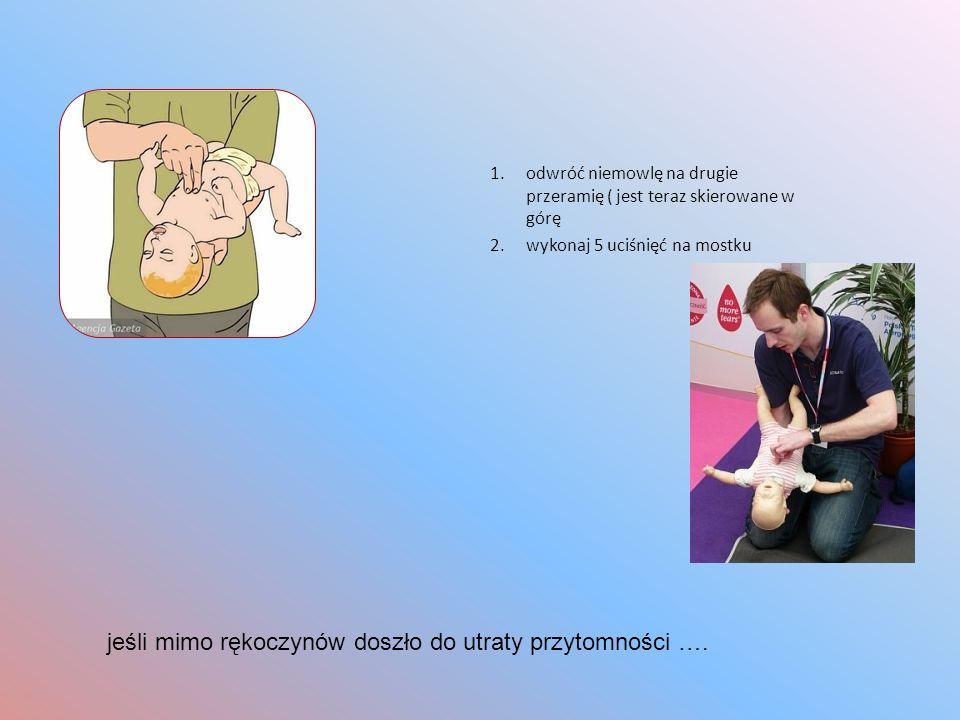 1.odwróć niemowlę na drugie przeramię ( jest teraz skierowane w górę 2.wykonaj 5 uciśnięć na mostku jeśli mimo rękoczynów doszło do utraty przytomnośc
