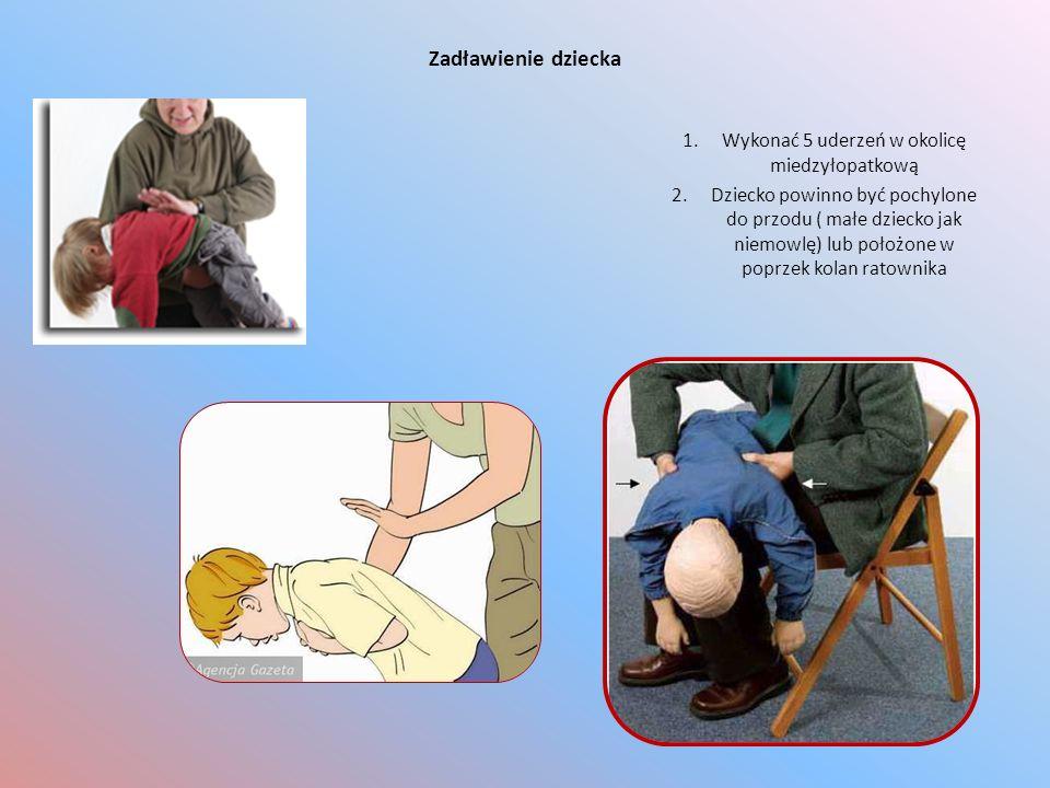 Zadławienie dziecka 1.Wykonać 5 uderzeń w okolicę miedzyłopatkową 2.Dziecko powinno być pochylone do przodu ( małe dziecko jak niemowlę) lub położone