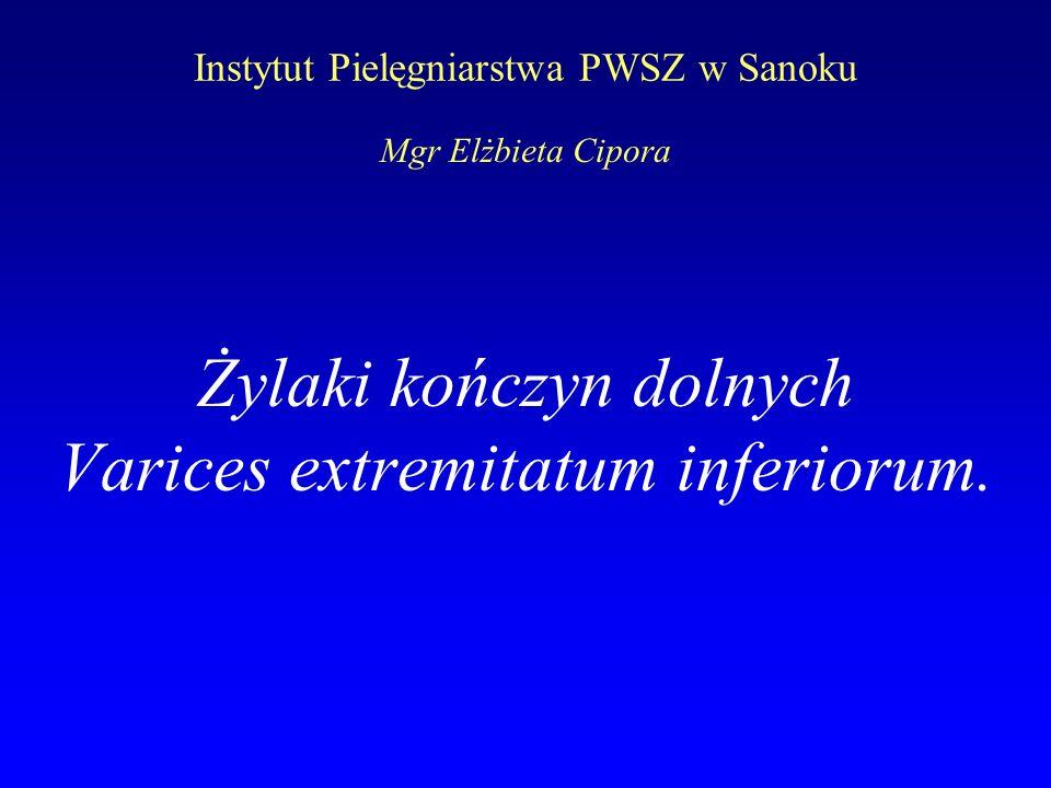 Instytut Pielęgniarstwa PWSZ w Sanoku Żylaki kończyn dolnych Varices extremitatum inferiorum. Mgr Elżbieta Cipora