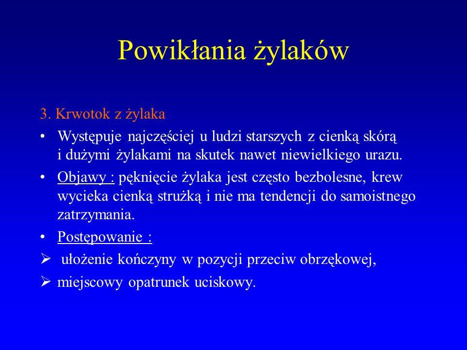 Powikłania żylaków 3.