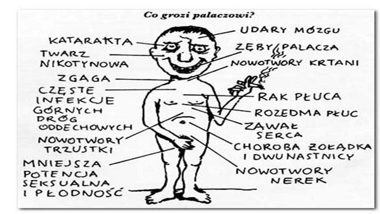 Społeczne skutki palenia:  Bezrobocie  Samobójstwa  Skrócenie długości życia  Kłótnie i przemoc w rodzinie  Zaburzenia emocjonalne  Naruszenia prawa