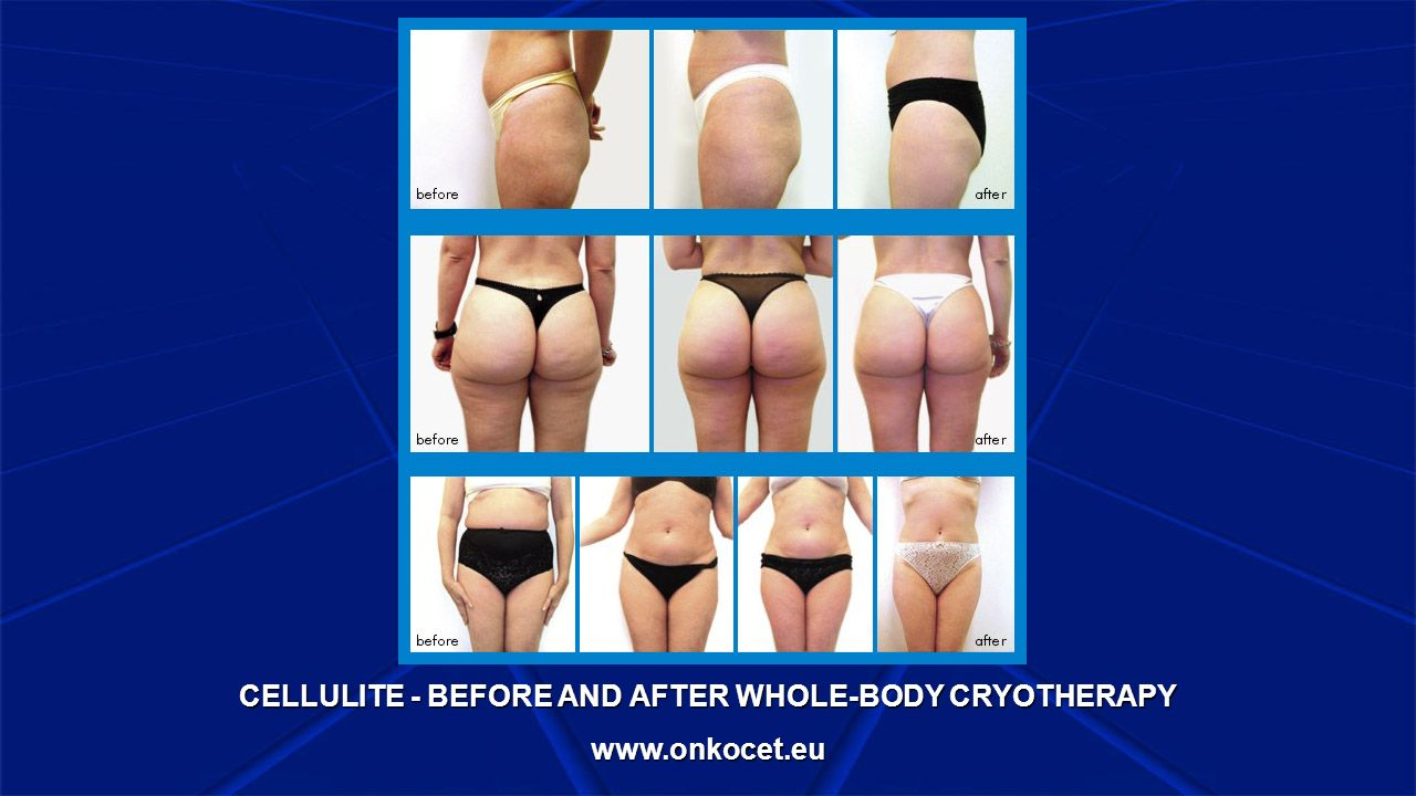 CELLULITE - BEFORE AND AFTER WHOLE-BODY CRYOTHERAPY www.onkocet.eu