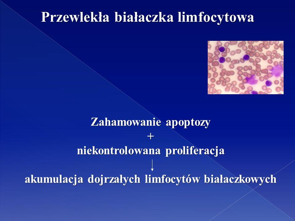 Przewlekła białaczka limfocytowa Zahamowanie apoptozy + niekontrolowana proliferacja akumulacja dojrzałych limfocytów białaczkowych