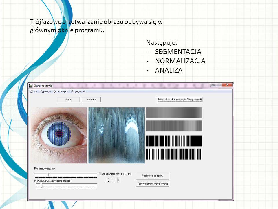 Segmentacja W trakcie segmentacji oznacza się obszar który zajmuje tęczówka oka, pozostały obszar uznawany jest za nieistotny.