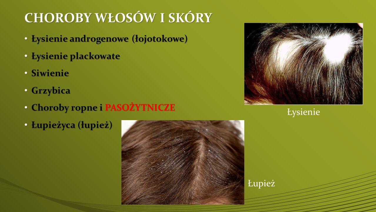 Choroba pasożytnicza włosów - WSZAWICA Wszawica występuje we wszystkich regionach świata i strefach klimatycznych.
