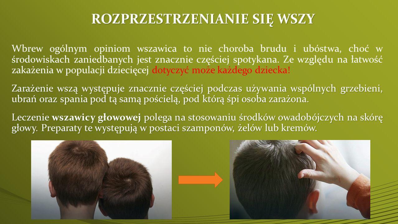 ZABOBIEGANIE WSZAWICY:  dbanie o utrzymanie szczególnej czystości w przedszkolach i szkołach,   związywanie długich włosów lub noszenie krótkich fryzur ułatwiających pielęgnację skóry głowy i włosów,   używanie wyłącznie osobistych przyborów higienicznych do pielęgnacji skóry i włosów,   codzienne czesanie i szczotkowanie włosów,   mycie włosów w miarę potrzeb (nie rzadziej niż raz w tygodniu!!!),   wyposażenie dzieci w środki higieniczne, takie jak szampony z odżywką ułatwiające rozczesywanie i wyczesywanie włosów,   systematyczne sprawdzanie czystości głowy i włosów oraz systematyczne kontrole w okresie uczęszczania dziecka do przedszkola i szkoły.