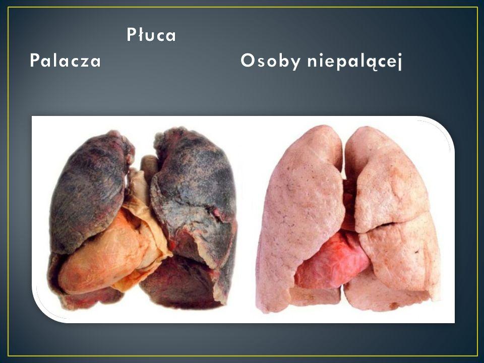 Mdłości nowotwór płuca, osteoporoza, nowotwór krtani, nowotwór jamy ustnej, wrzody żołądka, białaczka szpikowa.