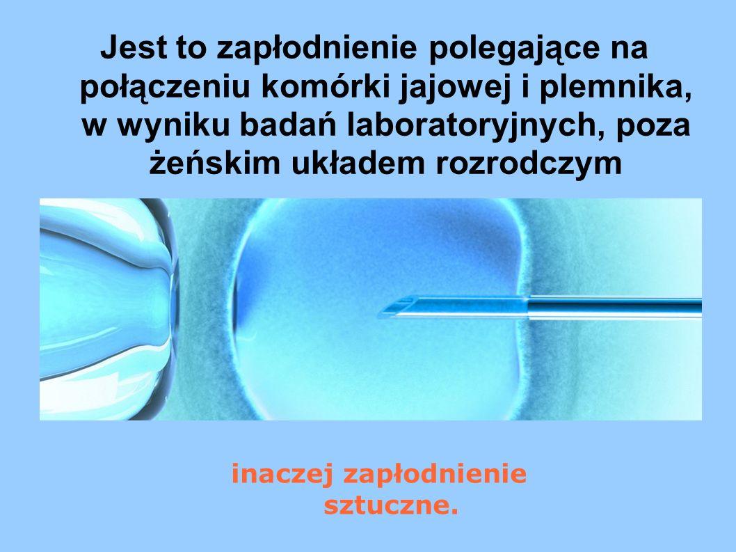 Jest to zapłodnienie polegające na połączeniu komórki jajowej i plemnika, w wyniku badań laboratoryjnych, poza żeńskim układem rozrodczym inaczej zapł