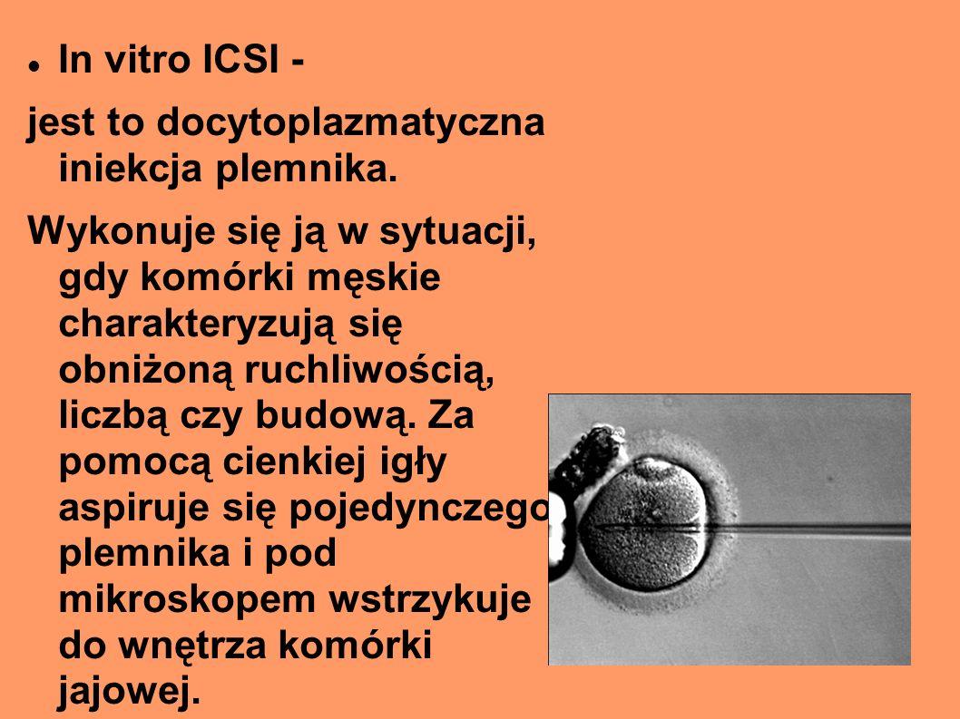 In vitro ICSI - jest to docytoplazmatyczna iniekcja plemnika. Wykonuje się ją w sytuacji, gdy komórki męskie charakteryzują się obniżoną ruchliwością,