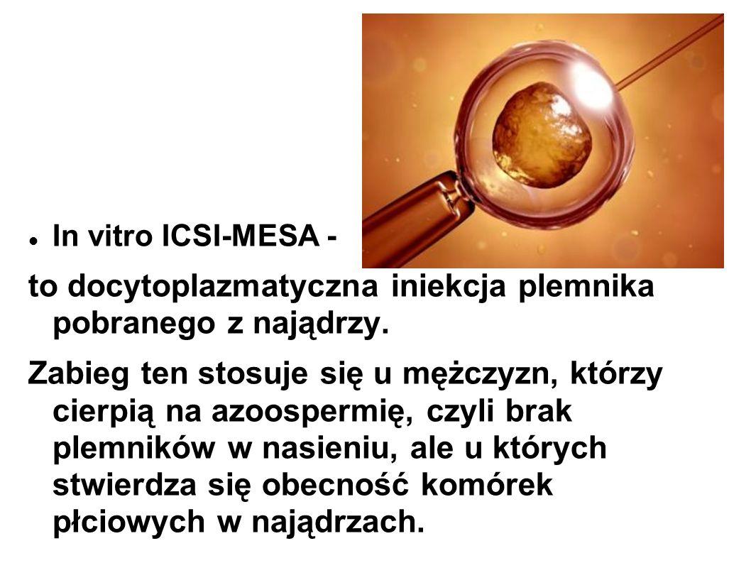 In vitro ICSI-MESA - to docytoplazmatyczna iniekcja plemnika pobranego z najądrzy. Zabieg ten stosuje się u mężczyzn, którzy cierpią na azoospermię, c
