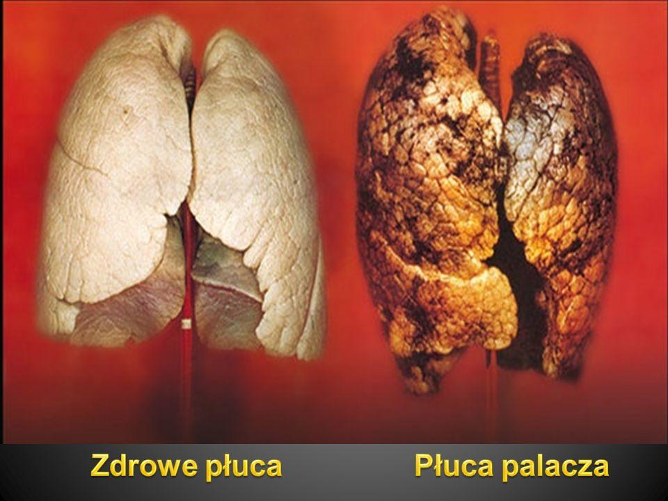 W dymie tytoniowym zawartych jest aż 4000 związków chemicznych, w tym substancje o działaniu:  toksycznym,  uszkadzającym DNA,  uszkadzającym płód,  rakotwórczym.