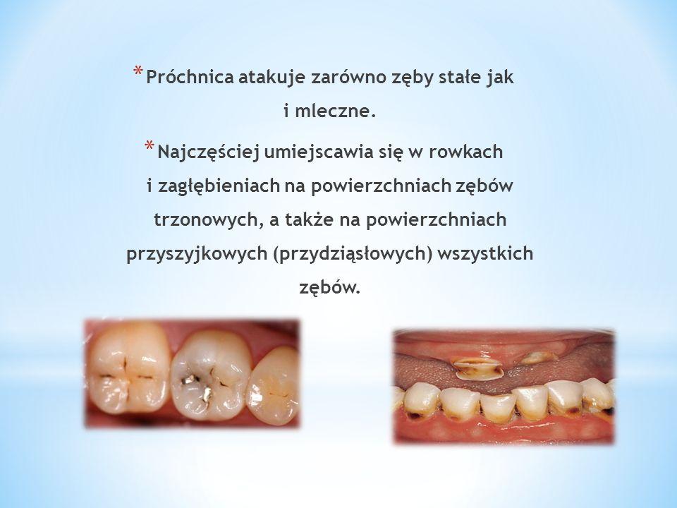 * Próchnica atakuje zarówno zęby stałe jak i mleczne. * Najczęściej umiejscawia się w rowkach i zagłębieniach na powierzchniach zębów trzonowych, a ta