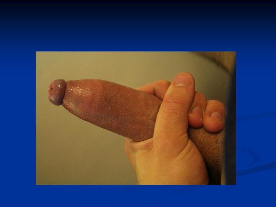 stulejka Pojęcie to jako określenie stanu chorobowego (patologicznego) ma sens dopiero od pewnego momentu rozwoju organizmu, gdyż u większości noworodków, niemowląt i dzieci (do około 2-3 lat) płci męskiej nie można napletka odsunąć do rowka zażołędnego i jest to prawidłowy stan fizjologiczny.