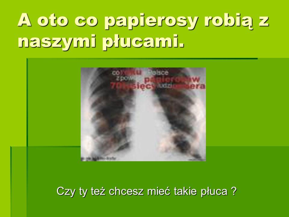 A oto co papierosy robią z naszymi płucami. Czy ty też chcesz mieć takie płuca