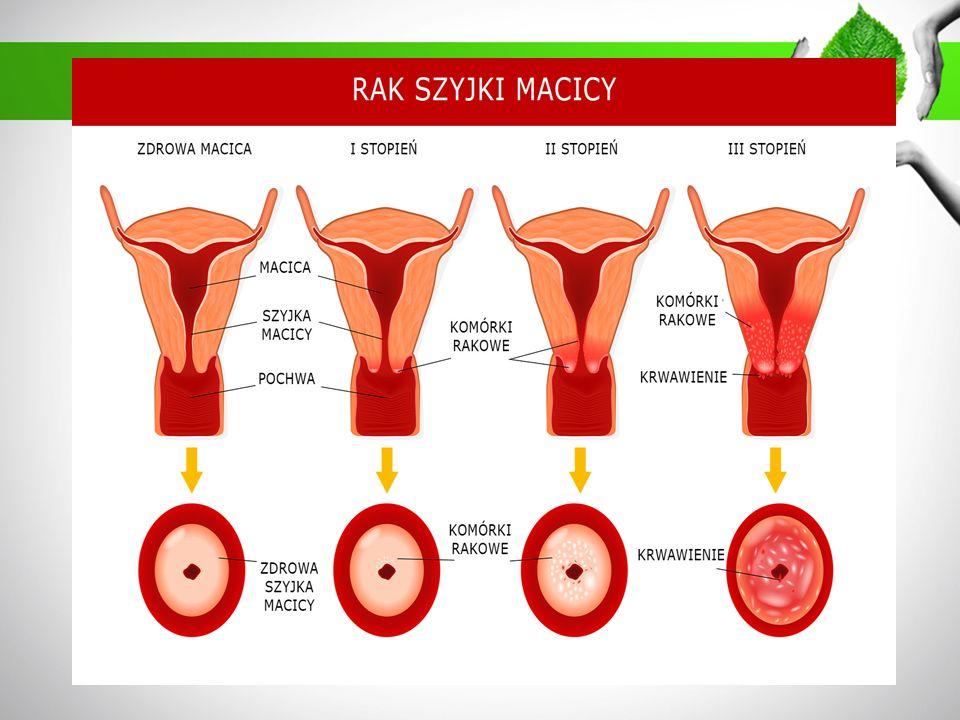 Do objawów raka szyjki macicy należą: nietypowe krwawienie z pochwy (plamienie między miesiączkami, krwawienie miesięczne, które trwa dłużej i jest bardziej obfite niż zwykle, krwawienie po menopauzie), krwawienie kontaktowe (po stosunku seksualnym, prysznicu lub badaniu ginekologicznym), obfite upławy z pochwy, ból podczas stosunku seksualnego, bóle podbrzusza,