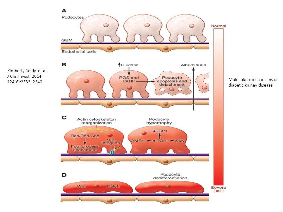 Odrębności obrazu patofizjologicznego i klinicznego uszkodzenia nerek w cukrzycy typu 1 i 2
