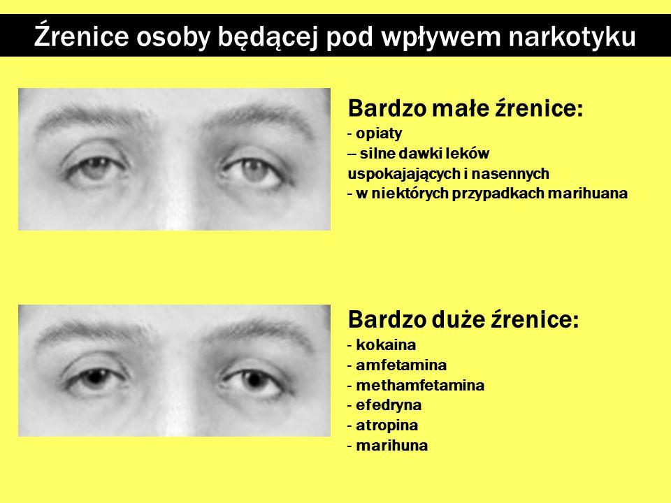 Twarz osoby nie zażywającej narkotyków Twarz osoby pod wpływem narkotyku Wygląd twarzy i powiek Opuszczone górne powieki Twarz o oznakach zmęczenia (o