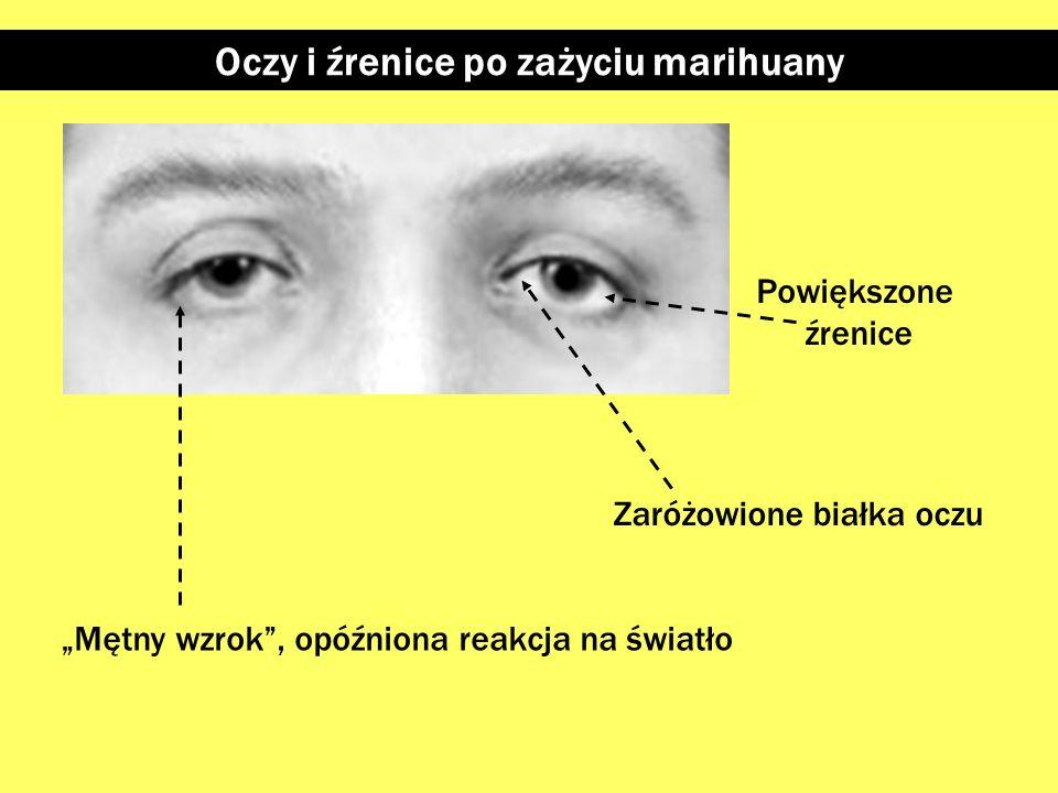 Źrenice osoby będącej pod wpływem narkotyku Bardzo małe źrenice: - opiaty -- silne dawki leków uspokajających i nasennych - w niektórych przypadkach m