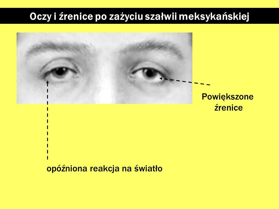 """Oczy i źrenice po zażyciu marihuany Powiększone źrenice """"Mętny wzrok"""", opóźniona reakcja na światło Zaróżowione białka oczu"""