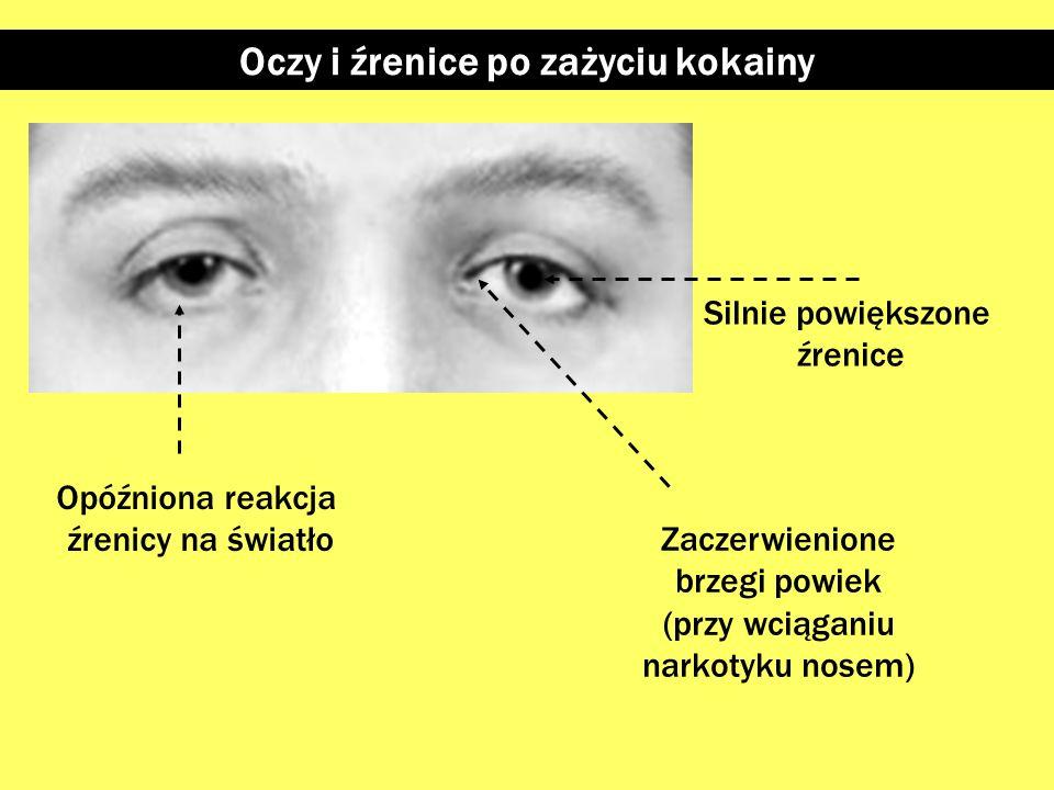Oczy i źrenice po zażyciu amfetaminy Silnie powiększone źrenice Opóźniona reakcja źrenicy na światło Zaczerwienione brzegi powiek (przy wciąganiu nark