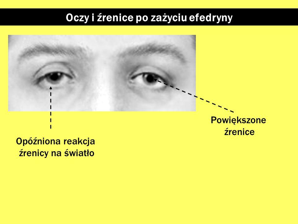 Oczy i źrenice po zażyciu kokainy Silnie powiększone źrenice Opóźniona reakcja źrenicy na światło Zaczerwienione brzegi powiek (przy wciąganiu narkoty