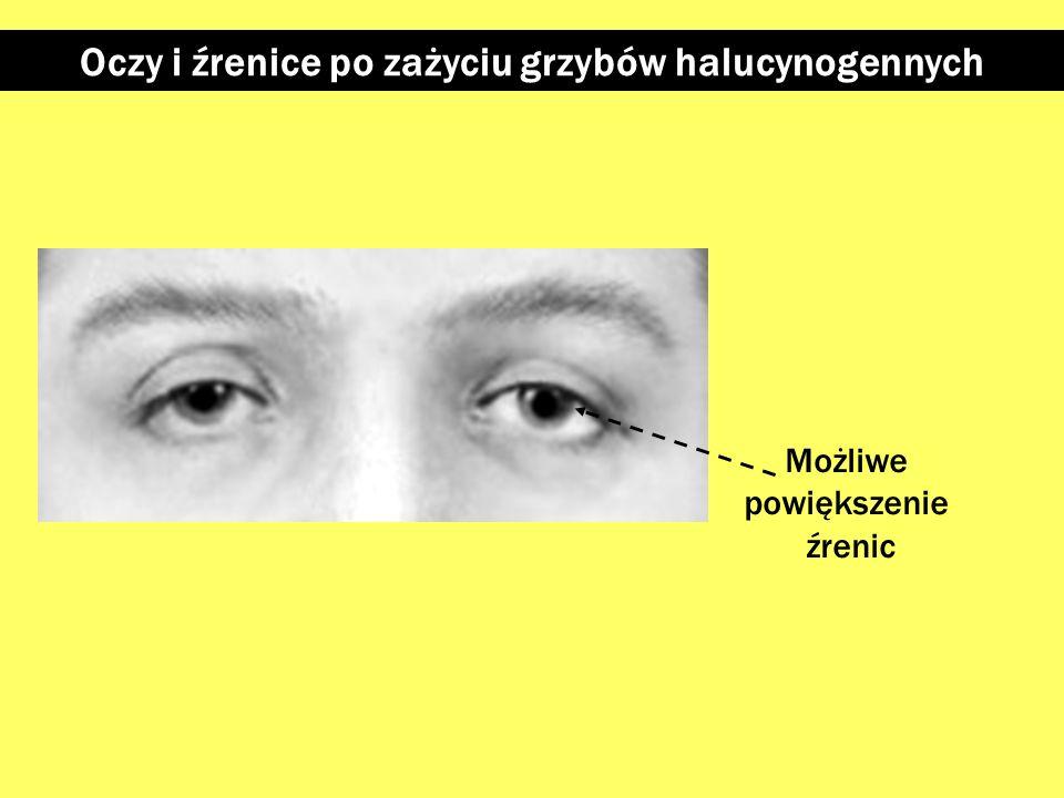 Oczy i źrenice po zażyciu ecstasy Powiększone źrenice Opóźniona reakcja źrenicy na światło