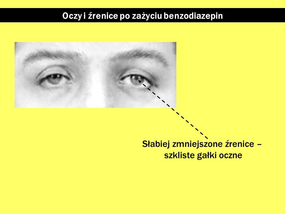 Oczy i źrenice po zażyciu grzybów halucynogennych Możliwe powiększenie źrenic