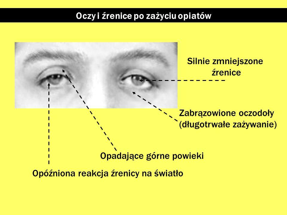 Słabiej zmniejszone źrenice – szkliste gałki oczne Oczy i źrenice po zażyciu benzodiazepin