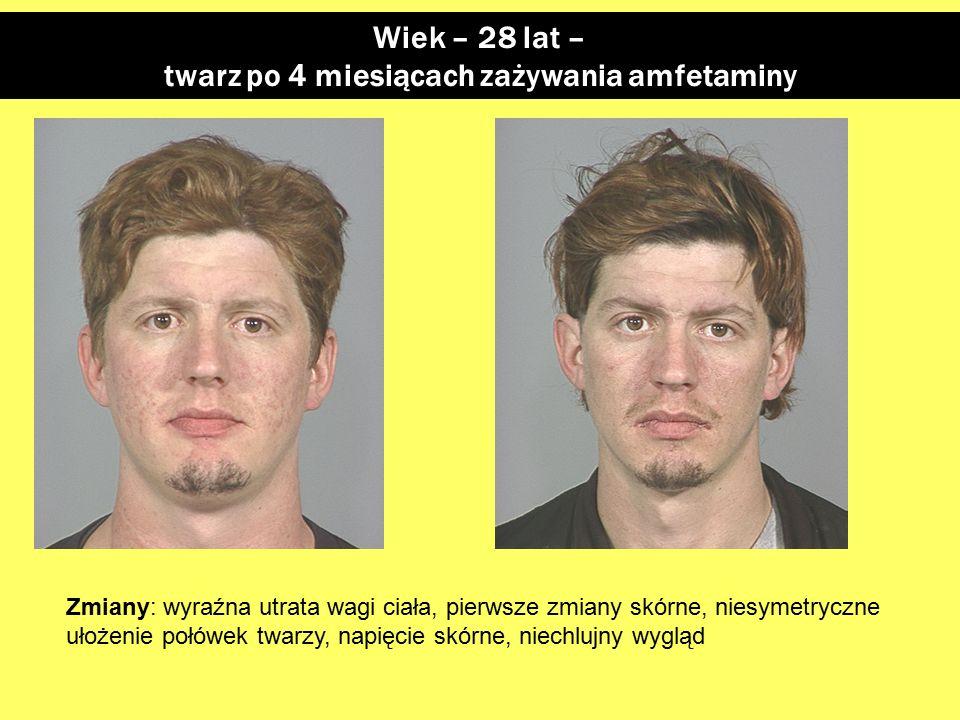 Wiek – 28 lat – twarz po 4 miesiącach zażywania amfetaminy Zmiany: wyraźna utrata wagi ciała, pierwsze zmiany skórne, niesymetryczne ułożenie połówek twarzy, napięcie skórne, niechlujny wygląd
