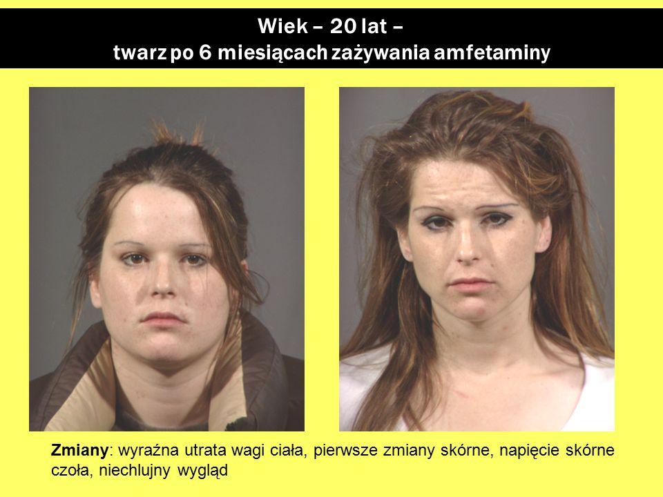 Wiek – 20 lat – twarz po 6 miesiącach zażywania amfetaminy Zmiany: wyraźna utrata wagi ciała, pierwsze zmiany skórne, napięcie skórne czoła, niechlujny wygląd