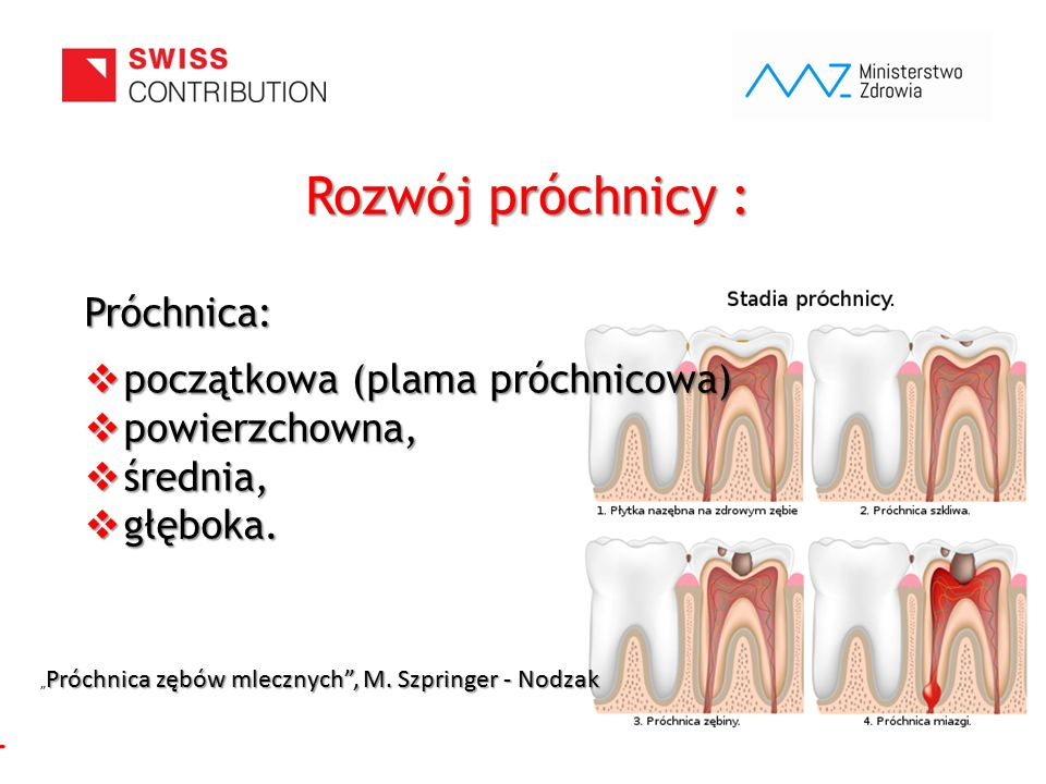 www.zebymalegodziecka.pl Rozwój próchnicy : Próchnica:  początkowa (plama próchnicowa)  powierzchowna,  średnia,  głęboka. Próchnica zębów mleczny