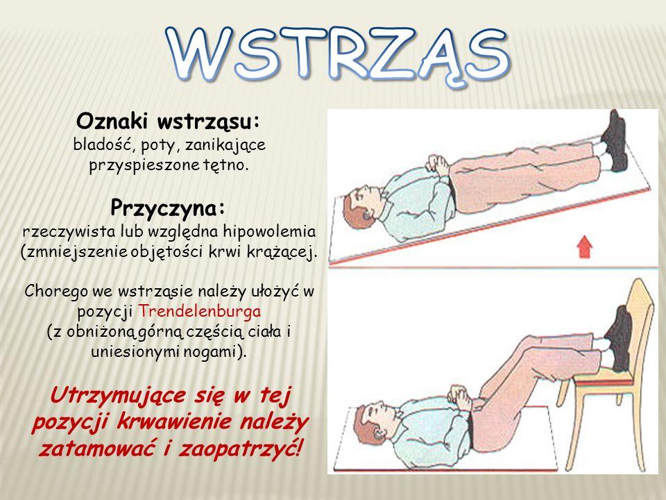Oznaki wstrząsu: bladość, poty, zanikające przyspieszone tętno. Przyczyna: rzeczywista lub względna hipowolemia (zmniejszenie objętości krwi krążącej.