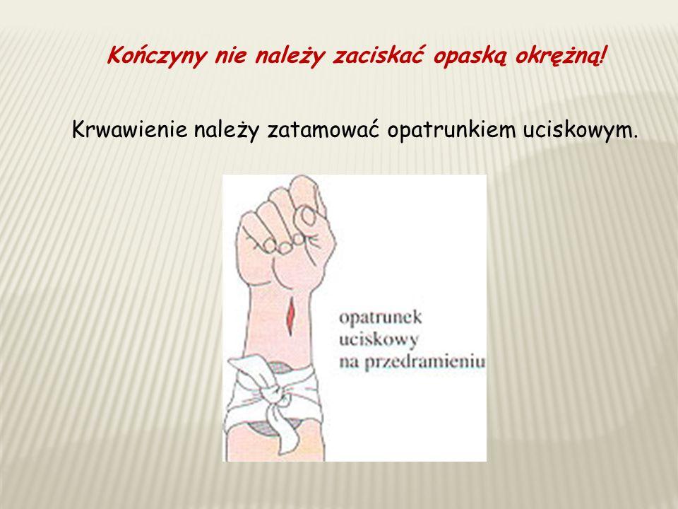 Kończyny nie należy zaciskać opaską okrężną! Krwawienie należy zatamować opatrunkiem uciskowym.