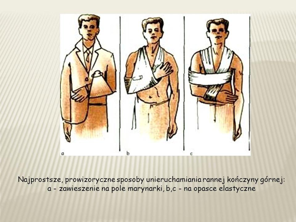 Najprostsze, prowizoryczne sposoby unieruchamiania rannej kończyny górnej: a - zawieszenie na pole marynarki, b,c - na opasce elastyczne