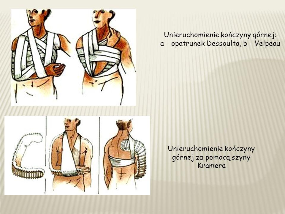 Unieruchomienie kończyny górnej: a - opatrunek Dessoulta, b - Velpeau Unieruchomienie kończyny górnej za pomocą szyny Kramera