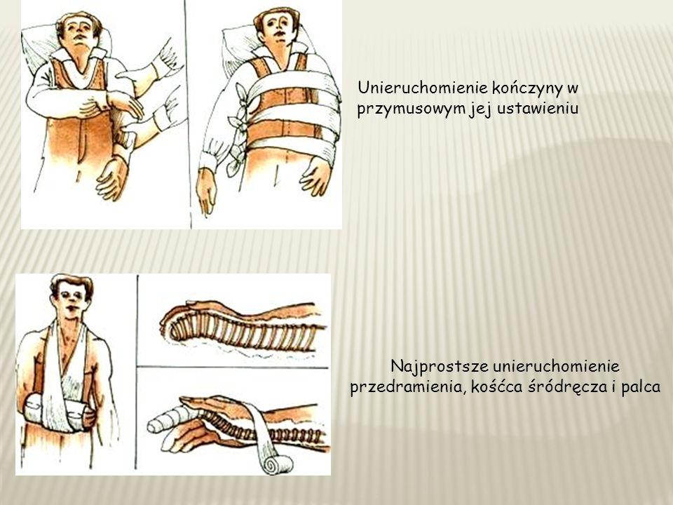Unieruchomienie kończyny w przymusowym jej ustawieniu Najprostsze unieruchomienie przedramienia, kośćca śródręcza i palca