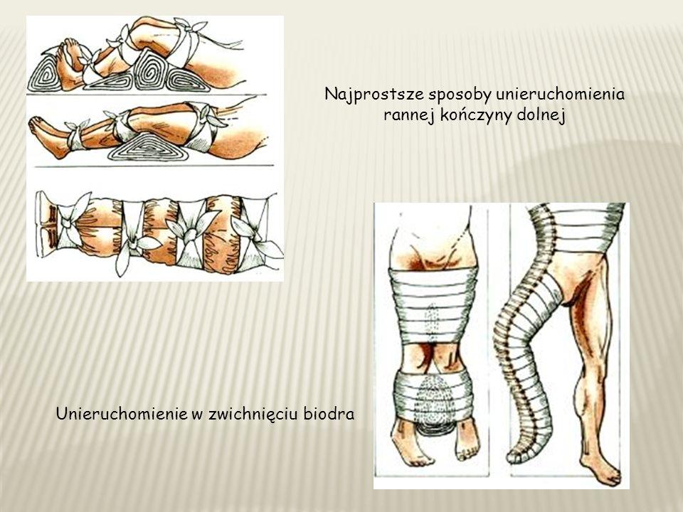Najprostsze sposoby unieruchomienia rannej kończyny dolnej Unieruchomienie w zwichnięciu biodra
