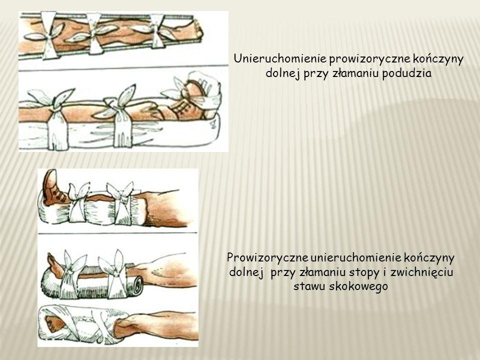 Unieruchomienie prowizoryczne kończyny dolnej przy złamaniu podudzia Prowizoryczne unieruchomienie kończyny dolnej przy złamaniu stopy i zwichnięciu stawu skokowego