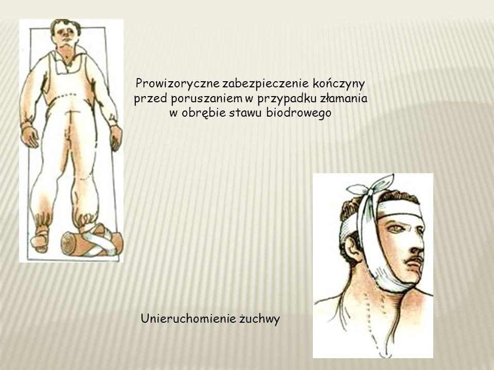 Prowizoryczne zabezpieczenie kończyny przed poruszaniem w przypadku złamania w obrębie stawu biodrowego Unieruchomienie żuchwy