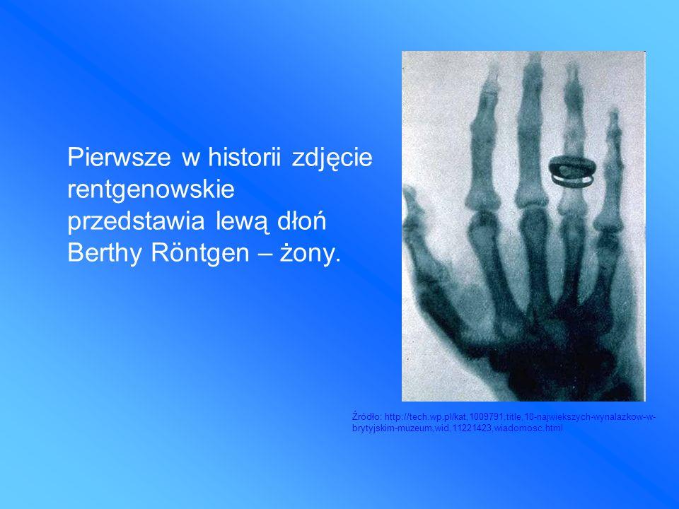 Pierwsze w historii zdjęcie rentgenowskie przedstawia lewą dłoń Berthy Röntgen – żony.