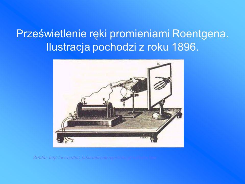 Prześwietlenie ręki promieniami Roentgena. Ilustracja pochodzi z roku 1896.