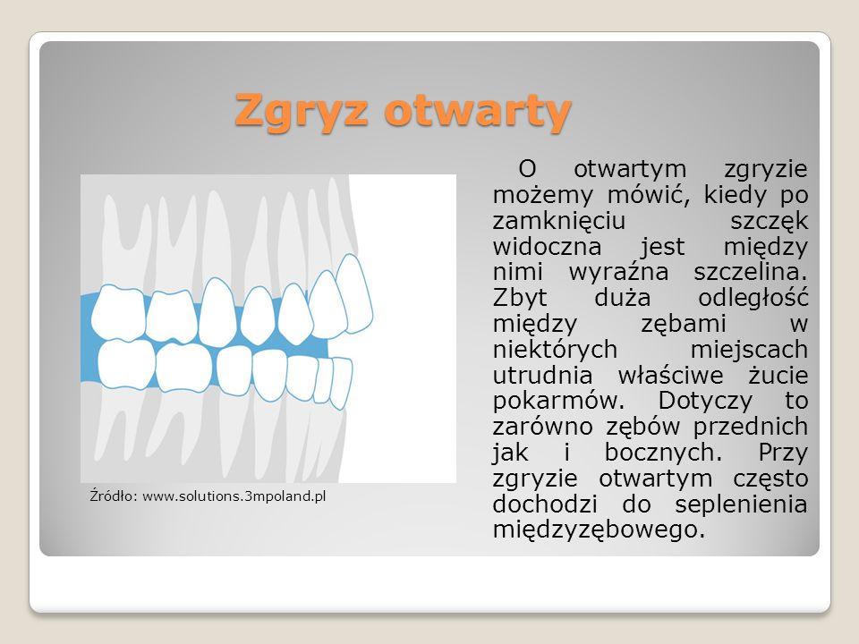 Zgryz otwarty O otwartym zgryzie możemy mówić, kiedy po zamknięciu szczęk widoczna jest między nimi wyraźna szczelina. Zbyt duża odległość między zęba