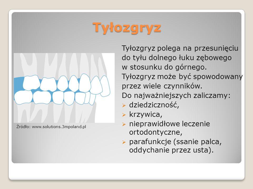 Tyłozgryz Tyłozgryz polega na przesunięciu do tyłu dolnego łuku zębowego w stosunku do górnego. Tyłozgryz może być spowodowany przez wiele czynników.