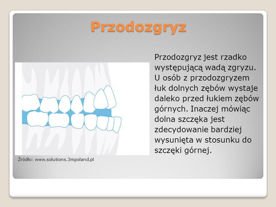 Przodozgryz Przodozgryz jest rzadko występującą wadą zgryzu. U osób z przodozgryzem łuk dolnych zębów wystaje daleko przed łukiem zębów górnych. Inacz