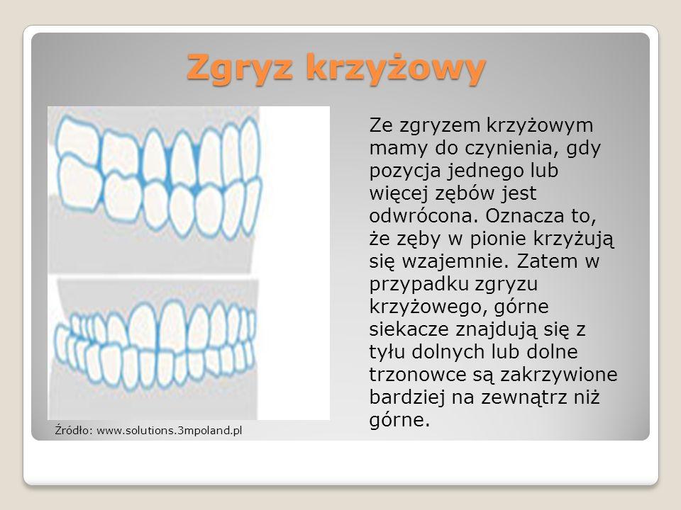 Zgryz krzyżowy Ze zgryzem krzyżowym mamy do czynienia, gdy pozycja jednego lub więcej zębów jest odwrócona. Oznacza to, że zęby w pionie krzyżują się