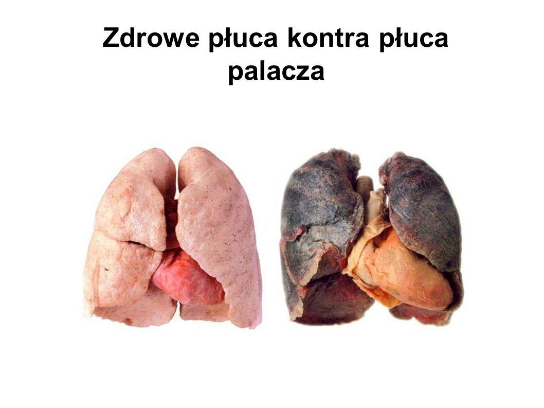 Zdrowe płuca kontra płuca palacza